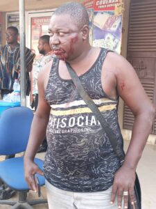 Awutu Senya East Constituency Secretary of the Nat. Democratic Congress beaten by MP thugs